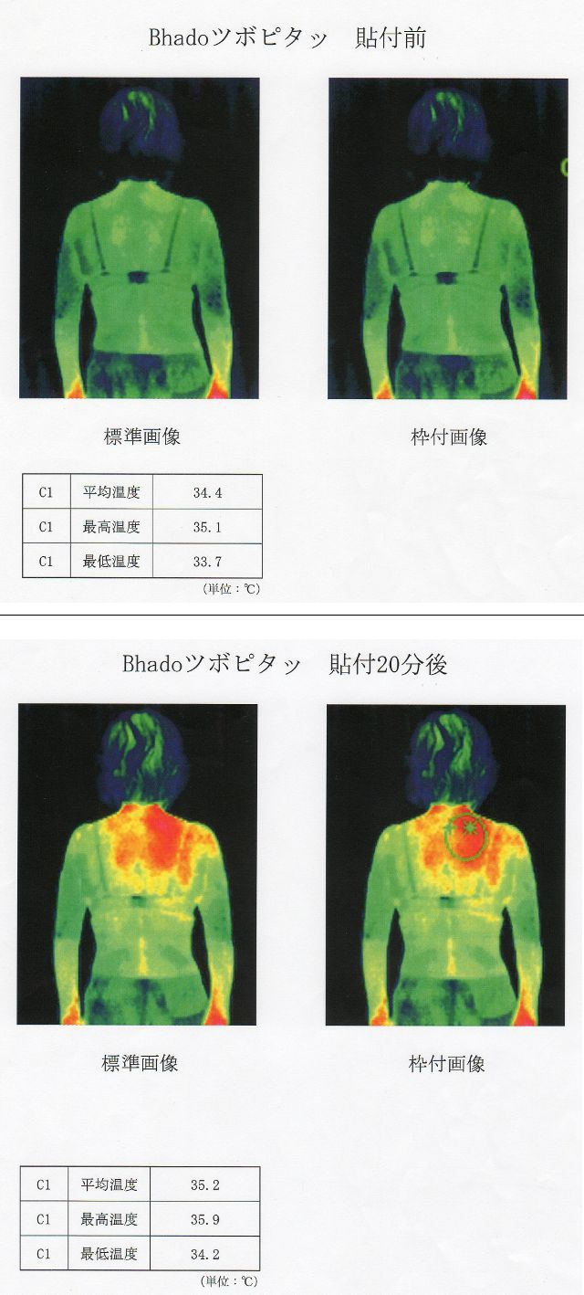 ツボピタッの温熱作用、検証結果